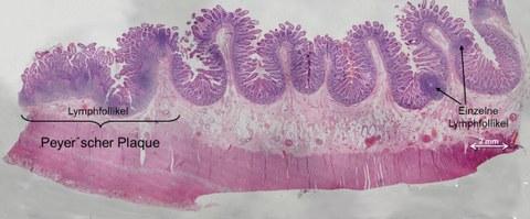 Querschnitt des humanen Ileums
